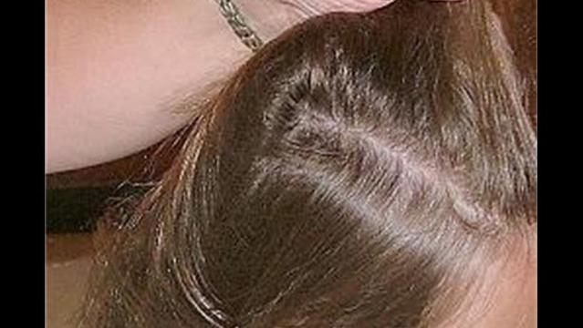 How to Prevent and Get Rid of Lice